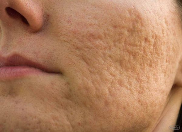 Acne most commonly occurs during adolesence and can leave scars after it has cleared up.