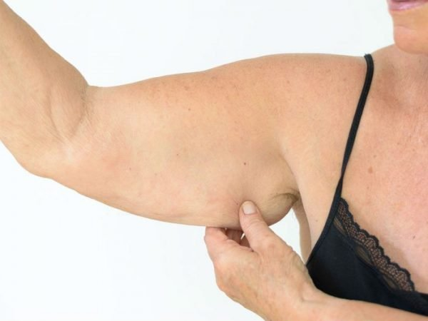 Many people who have lost weight or who are unhappy with their appearance choose to have an arm lift to reshape the arm.