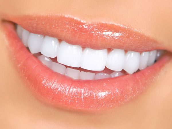 A bone graft procedure is often performed on patients who require dental implants.