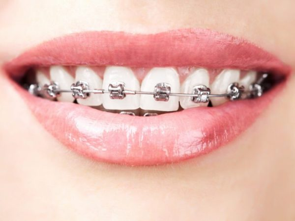Braces are usually worn between 6 and 12 months.