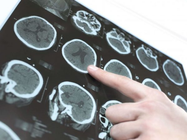 Before surgery is considered, an MRI or CT scan of the brain is taken to establish the size and location of the tumor.
