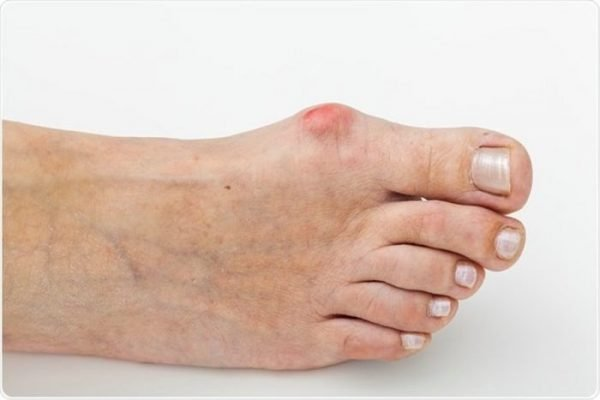 A bunion is a deformity of the big toe whereby a bump forms on the bone and causes pain and discomfort.