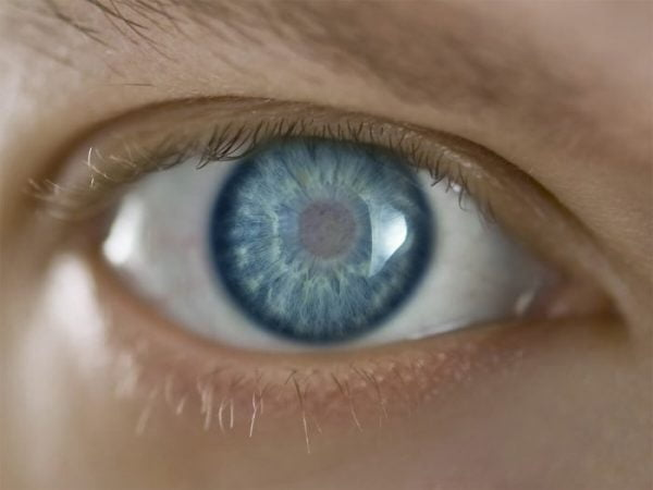 Cataracts appear as a cloudy patch on the lens of the eye.