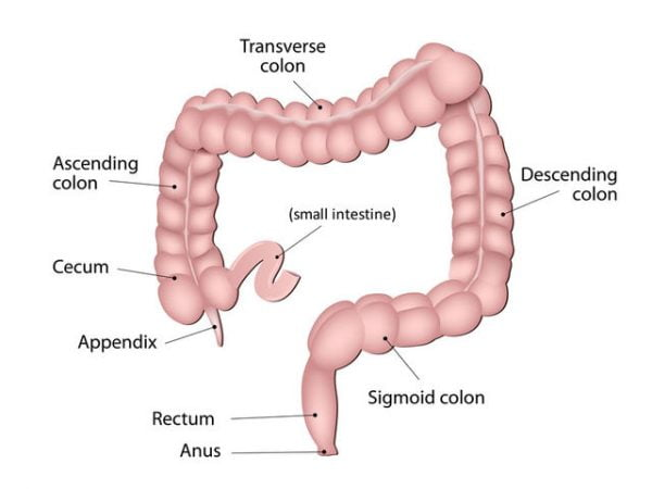 A colonoscopy enables the doctor to examine the lining of the large intestine.