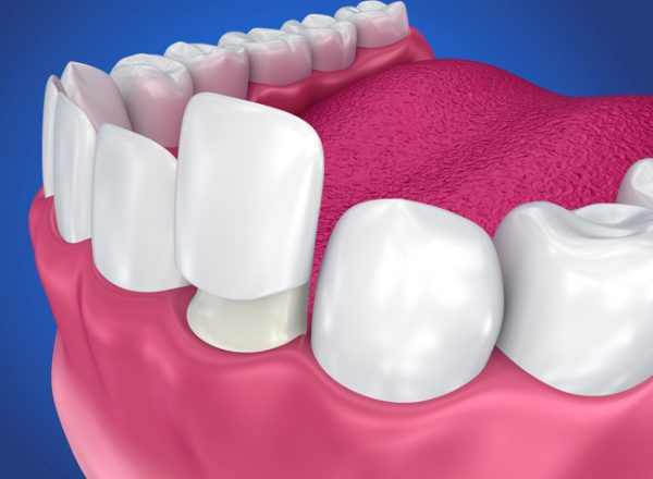 Crowns can help to salvage a damaged and decayed tooth.