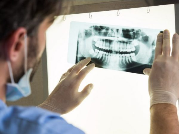 A panoramic dental X-ray shows the full mouth.