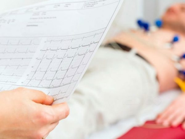 An electrocardiogram can identify an irregular heartbeat or other signs of heart problems.