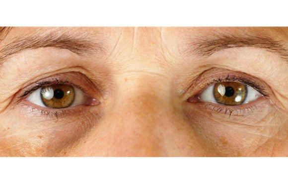 Eye bag treatments target puffy eyes, dark circles, and sagging skin.