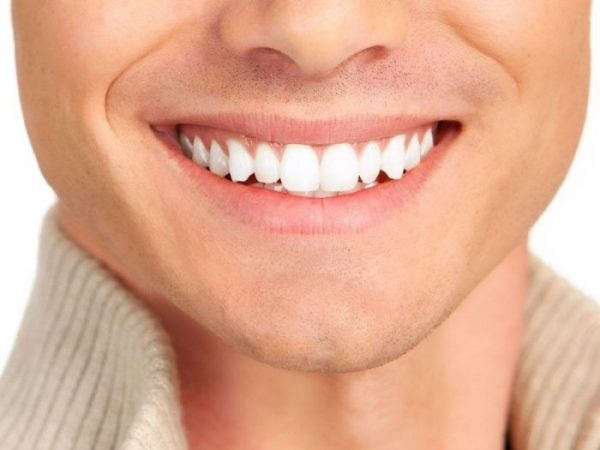 Some veneers are very thin, meaning that the teeth need little or no preparation.