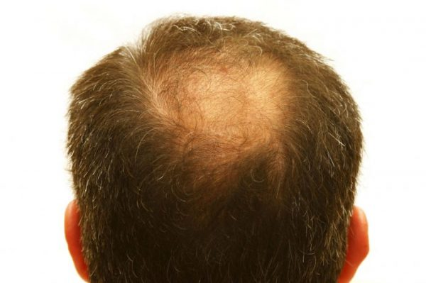 Hair loss treatments are recommended for patients with thinning hair, rather than complete hair loss.