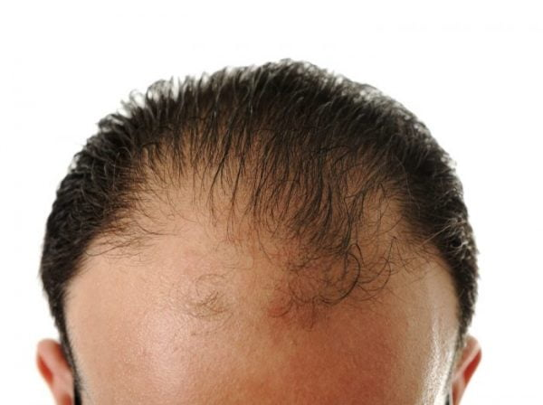 Hair transplantation is commonly performed on patients suffering with male-pattern baldness.