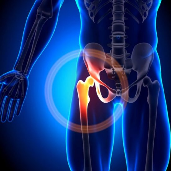 A hip replacement is used to partially or fully replace a damaged hip joint.