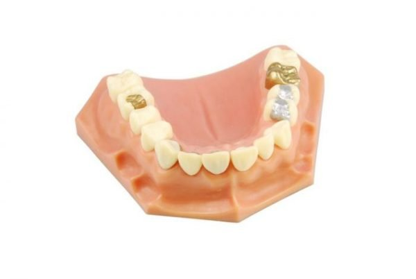 An inlay or onlay may be fitted if a cavity is really big, or to replace a filling that has not stayed in place.
