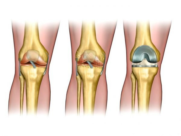 Knee replacement surgery is performed when the joints in the knee are not functioning correctly.
