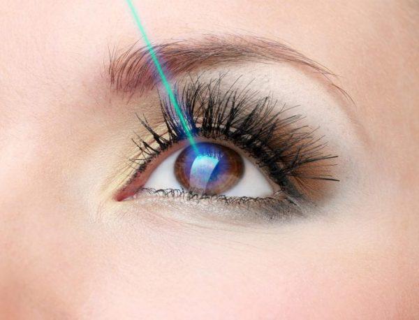 Millions of people around the world have undergone LASIK surgery.