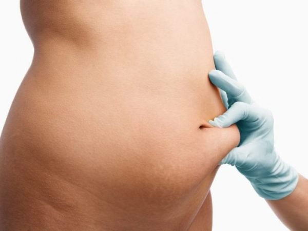 Liposuction is the surgical removal of excess fat from the body.