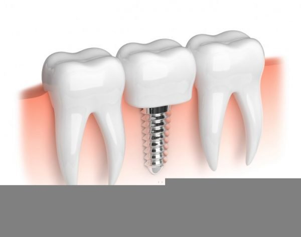 A mini implant is a good option to fill a narrow gap in the teeth.