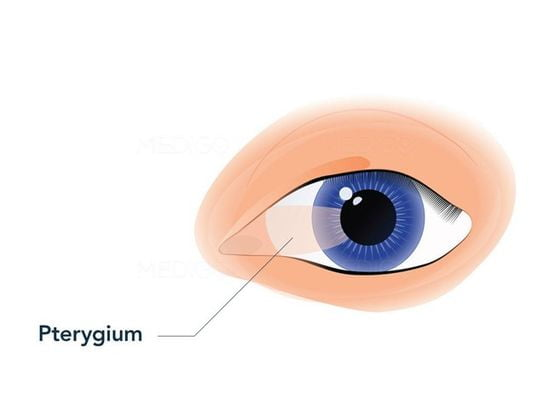 Pterygium is the growth of tissue that builds up on the cornea.