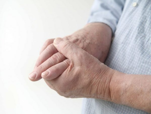 Rheumatoid Arthritis most commonly causes pain, swelling, and stiffness in the hands and feet.