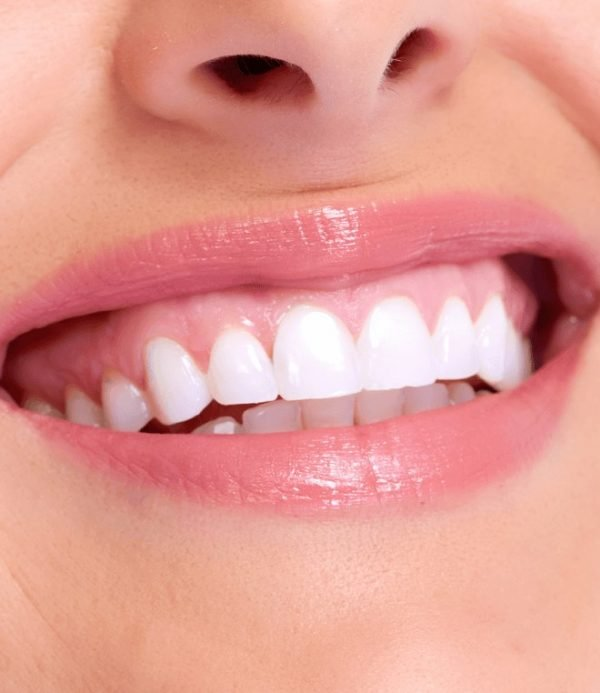 Scaling and root planing can help to reduce the presence of gum disease.
