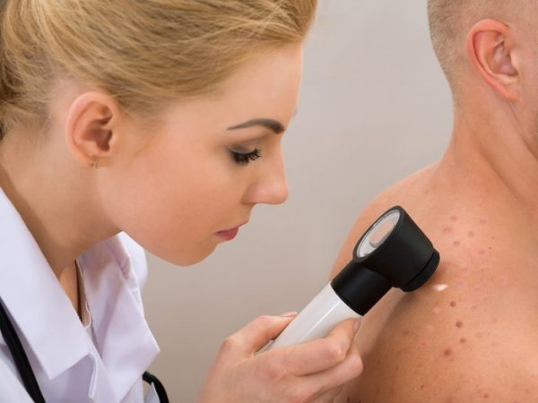 The skin is examined by a dermatologist or doctor and the they will then prepare for the biopsy.