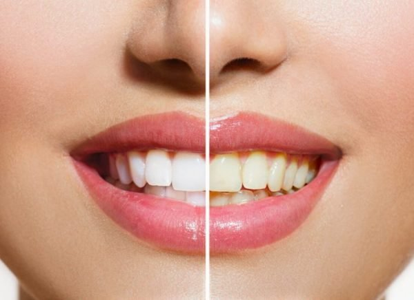 Bright, white, Hollywood smiles are becoming increasingly popular.