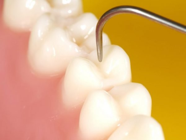 Filling the fissures in the tooth prevents food from getting stuck and prevent the formation of cavities.