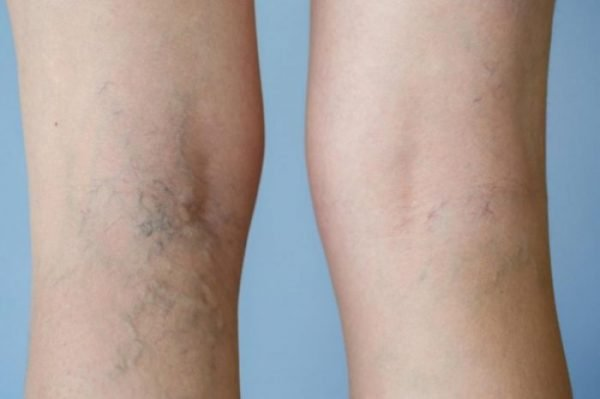 Varicose veins have a weakened wall and become swollen and twisted.